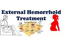 hemorrhoid-onitments-ZIHONGYU-external .jpg