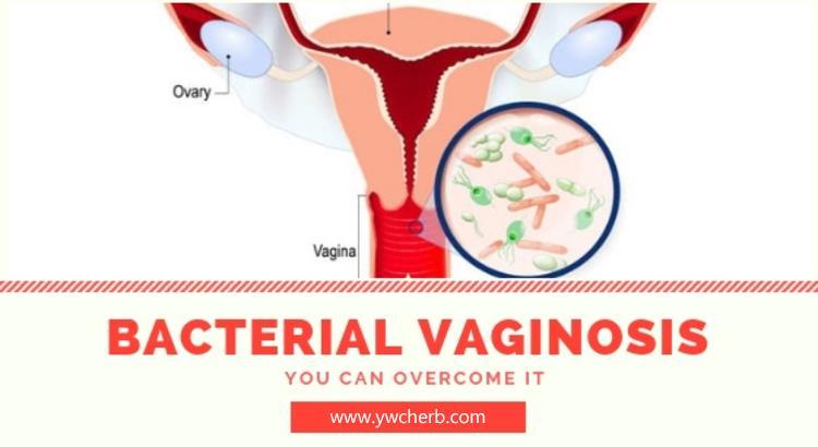 Treating bacterial vaginosis gel